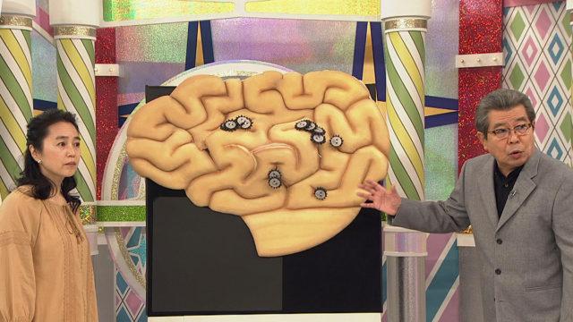 認知症予防